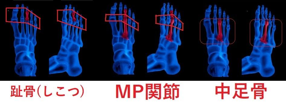 趾骨(しこつ)、MP関節、中足骨
