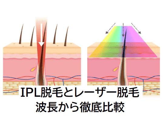 IPL脱毛とレーザー脱毛の波長を比較
