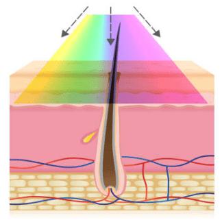 光脱毛は幅広い波長で照射