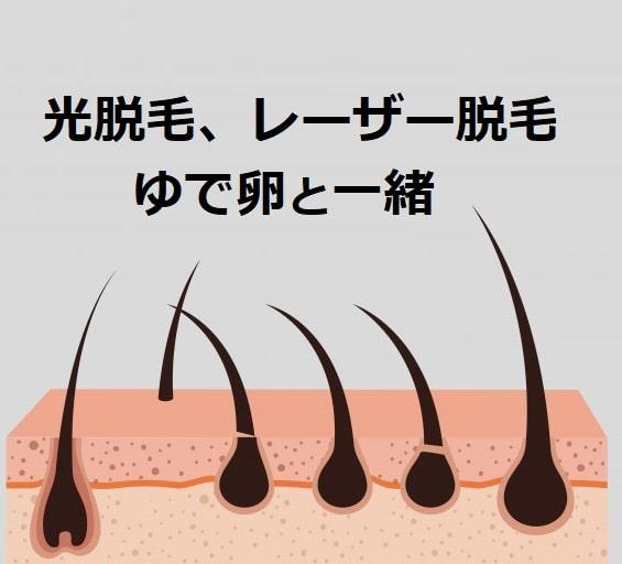 光脱毛とレーザー脱毛はゆで卵と同じメカニズムです