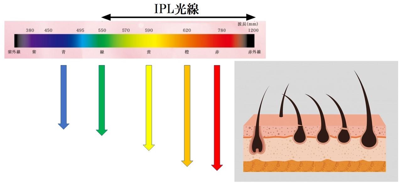 IPL光線の波長の長さ