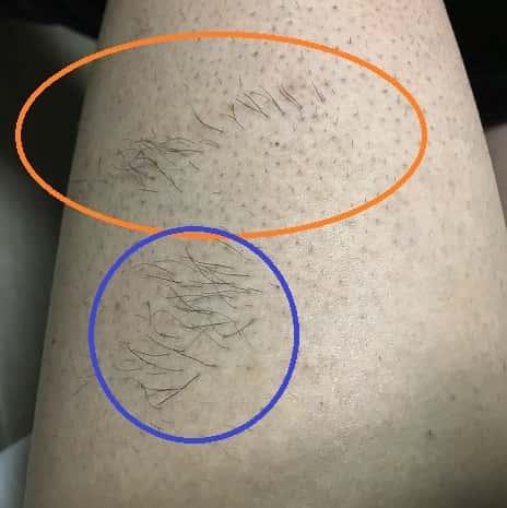 メンズ脱毛のこれが照射漏れ