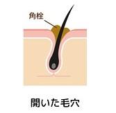 毛穴の中の体毛の周りでは汚れが溜まりやすい
