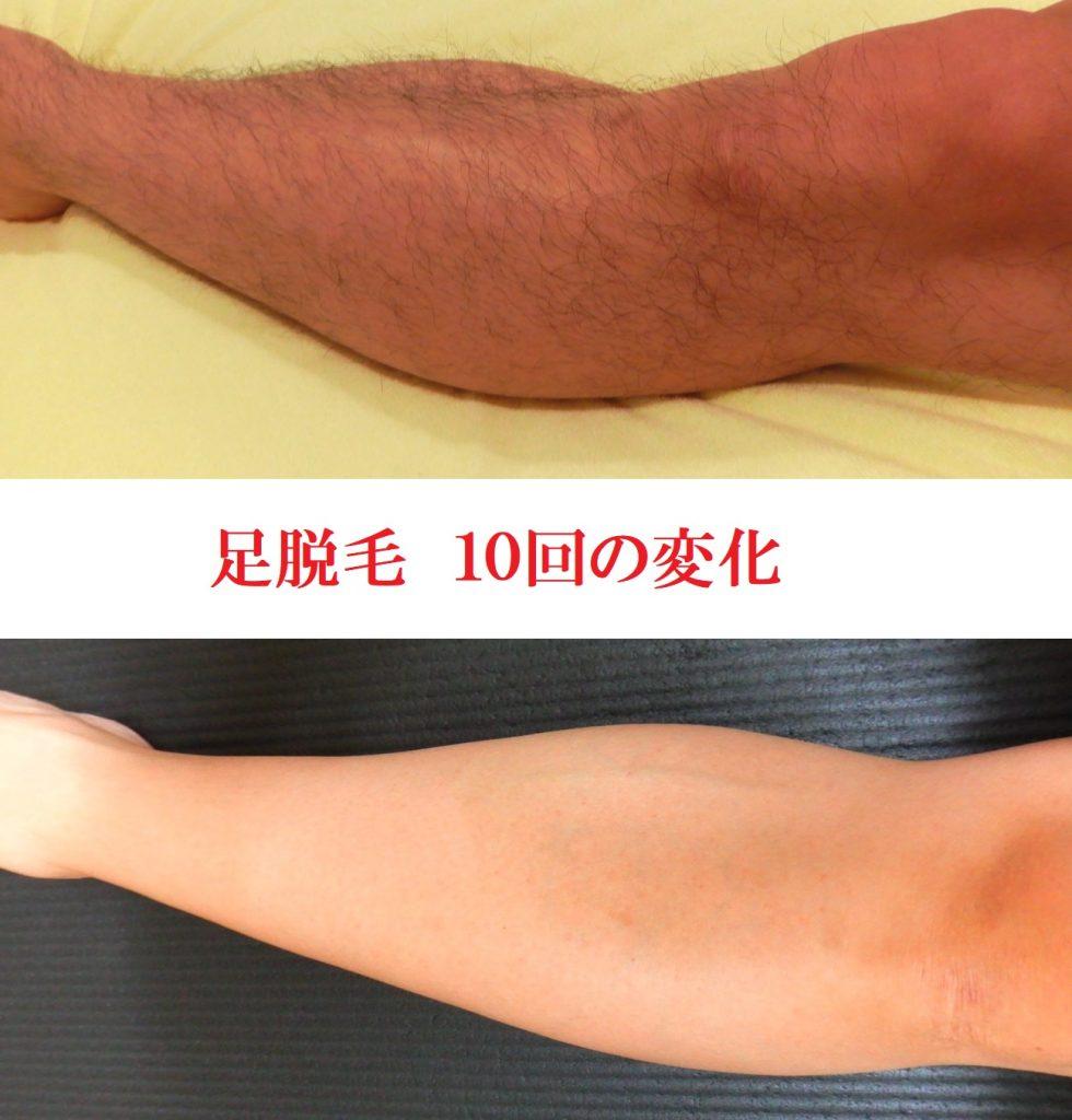 メンズ光脱毛、足脱毛10回の変化
