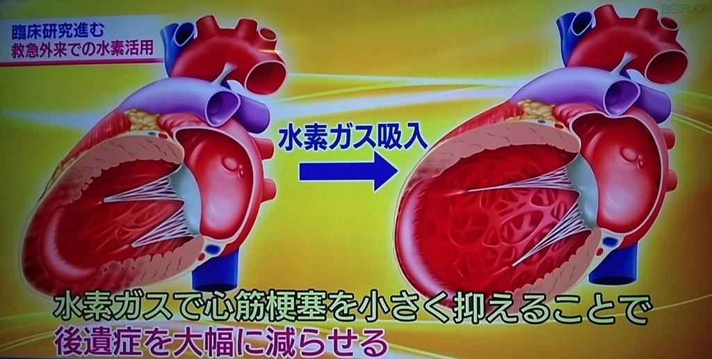水素吸入で心筋梗塞の後遺症を大幅減