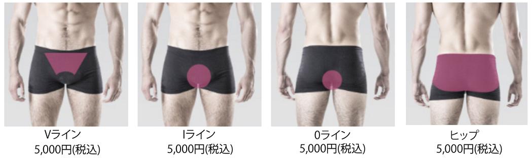 メンズ脱毛VIO+ヒップコース