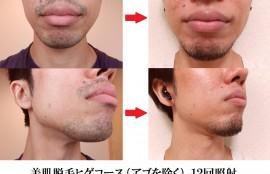 美肌脱毛ヒゲコース12回、光脱毛照射の変化