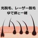 毛根を破壊しても脱毛はできない?毛母細胞を固めることがポイント